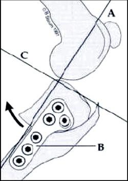 tplo_diagram